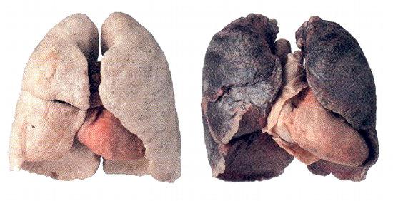 Si cesser de fumer probablement avec tabeksom