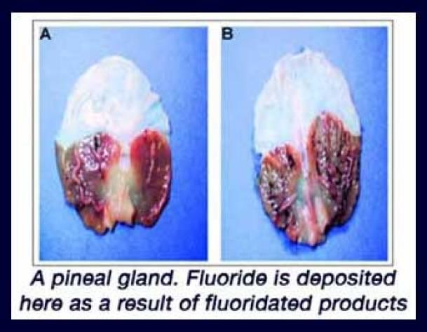 pineal_fluoride